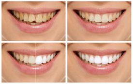 Boulevard Center for Advanced Dentistry | Port St. Lucie Dentist | Smile Makeover
