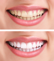 Boulevard Center for Advanced Dentistry | Port St. Lucie Dentist | Teeth Whitening