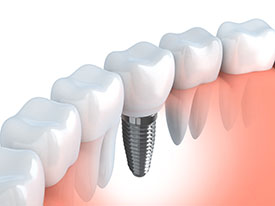 Boulevard Center for Advanced Dentistry | Port St. Lucie Dentist | Single Tooth Implants