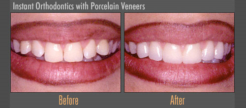 Instant Orthodontics with Porcelain Veneers | Boulevard Center for Advanced Dentistry | Port St. Lucie Dentist