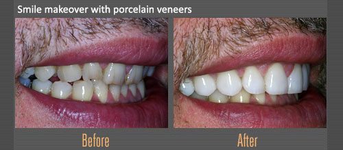 Smile Makeover Porcelain Veneers | Boulevard Center for Advanced Dentistry | Port St. Lucie Dentist