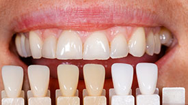 Boulevard Center for Advanced Dentistry | Port St. Lucie Dentist | Porcelain Veneers